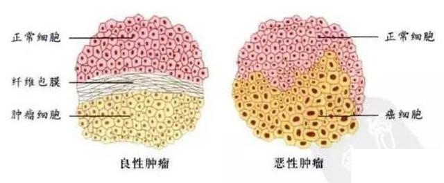 良性腫瘤 vs 惡性腫瘤