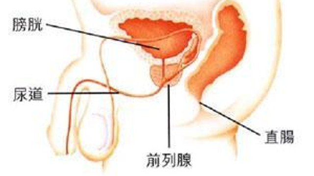 談病說醫:膀胱